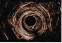 血流の少ない肛門