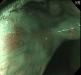 咽頭がん02